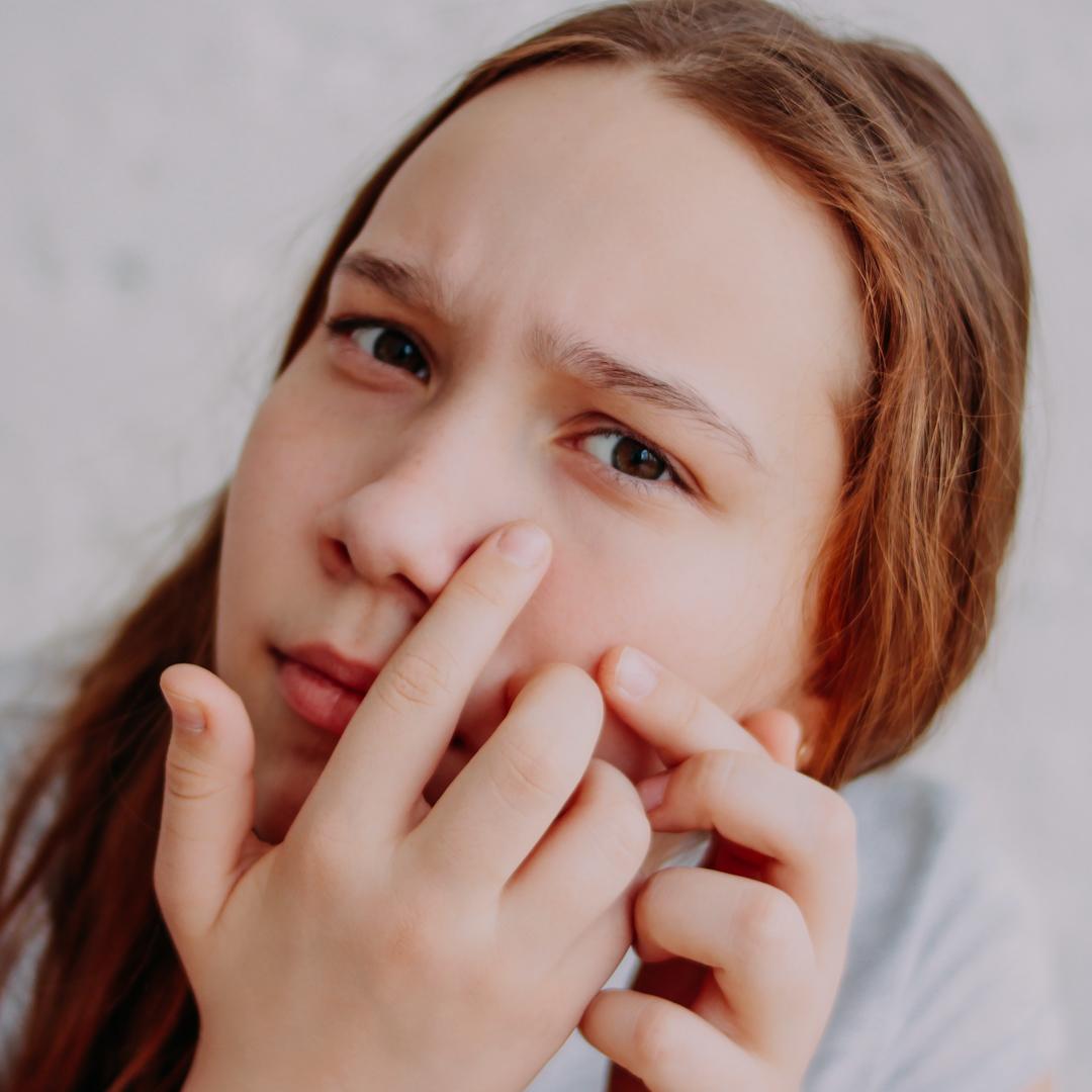 Acne prevention cover